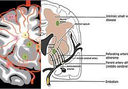 "Lancet Psychiatry:中风、疲劳、冷漠、痴呆……这都是脑<font color=""red"">小</font>血管<font color=""red"">病</font>,得治!"