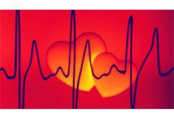 Am J Med:CA125指导下的利尿策略能显著改善急性心衰和肾功能障碍患者短期的肾功能