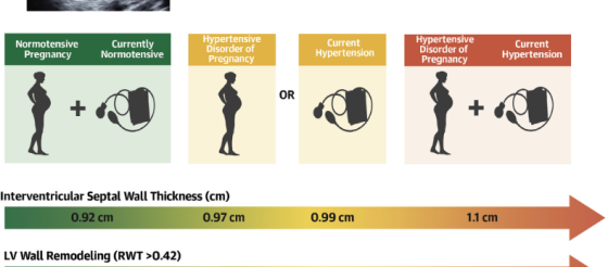 J Am Coll Cardiol:有过妊娠期高血压,就要一生警惕心血管疾病!