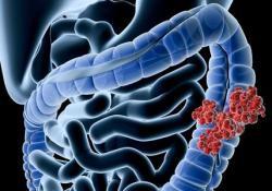 GUT: 粪便免疫化学测试筛查对发现近端和远端结直肠癌的长期有效性分析