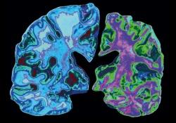 "Alzheimer dementia :<font color=""red"">阿</font><font color=""red"">尔</font><font color=""red"">兹</font><font color=""red"">海</font><font color=""red"">默</font>和脑中风具有共同的风险-保护特征"