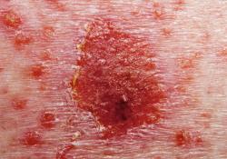 "UCB在《Lancet》上发表bimekizumab治疗斑块状<font color=""red"">银屑</font><font color=""red"">病</font>的最新数据"