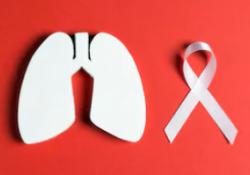 "Cell Death Differ:KDM4C通过表观<font color=""red"">遗传</font><font color=""red"">学</font>修饰促进肺癌放疗抗性的产生"