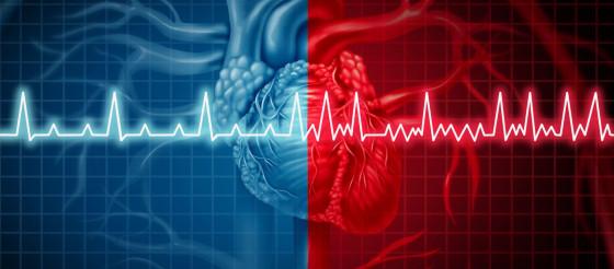 JAMA Cardiology:降低卒中、心衰风险——可穿戴式cECG可将房颤检出率提高10倍!