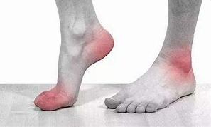 Am J Med:伴或不伴痛风的高尿酸血症患者,dotinurad VS. benzbromarone的疗效