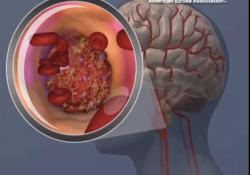 "Neurology:超20万人群研究证实,多吃素可将卒中<font color=""red"">风险</font>降低10%"