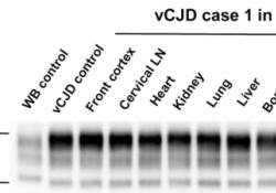 "<font color=""red"">Acta</font> Neuropathologica: 朊病毒在vCJD和sCJD患者外周组织中广泛分布"