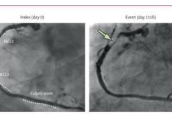 "Lancet:近红外光谱-血管内超声联合应用评估非<font color=""red"">梗阻</font>性病变的未来风险"