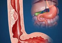 "Gastric Cancer:3期| 氟尿嘧啶/噻哌啶治疗转移<font color=""red"">性</font>胃<font color=""red"">食管</font>交界癌的疗效"