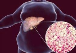 """Lancet子刊:""""鸡与蛋""""之谜——揭秘肥胖/胰岛<font color=""""red"""">素</font>抵抗/糖尿病之间的""""三部曲"""""""
