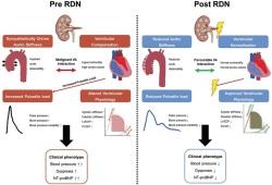 Circ Heart Fail:去肾交感神经术在动脉高压治疗中的潜在作用