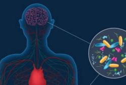 NPJ Parkinsons Dis:帕金森氏病肠道微生物群变化与肠道炎症有关