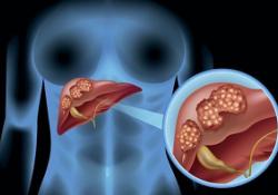 "Hepatology:肥胖和缺乏体力活动者患<font color=""red"">肝癌</font>风险高!"