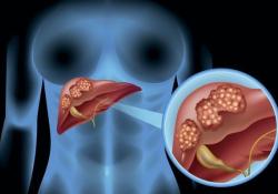 "Hepatol Int:部分<font color=""red"">脾</font>栓塞联合内镜治疗可明显降低<font color=""red"">脾</font>亢的肝硬化患者的静脉曲张再出血率"