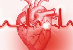 JACC:1型和2型心肌梗死患者的不同的临床特征和预后