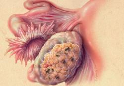 """Br J Cancer:SKP<font color=""""red"""">1</font>和CUL<font color=""""red"""">1</font>表达降低引起高级别浆液性卵巢癌细胞染色体不稳定性的发生"""