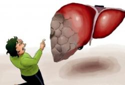 AJG:抗凝药物与经颈静脉肝内门静脉分流术治疗肝硬化门静脉血栓的疗效差异分析