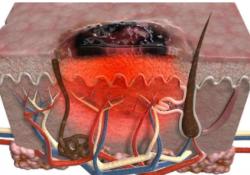 "Br J Cancer:免疫检查点阻断治疗诱导的自身免疫与转移性黑色素瘤的预后和独特的<font color=""red"">T</font>细胞表达谱相关"