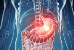 Br J Cancer:Mandard分级高:不代表食管腺癌对化疗无反应