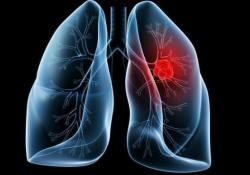"Br J Cancer:Olaparib<font color=""red"">奥</font><font color=""red"">拉</font><font color=""red"">帕</font>尼联合半胸放疗提高肺癌的治疗指数"