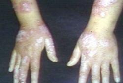 CHMP建议批准Benlysta用于治疗活动性狼疮性肾炎