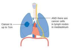 "Tecentriq一线治疗转移性非小细胞肺癌,<font color=""red"">CHMP</font>持积极意见"