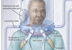 "JAMA:头盔<font color=""red"">通气</font>对新冠肺炎患者呼吸支持天数的影响"