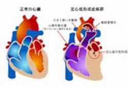 """JAHA:<font color=""""red"""">重症</font><font color=""""red"""">监护</font>患者右心室肺动脉耦联与死亡率的关系"""