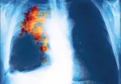 "Lancet Oncology:局限期小细胞肺癌目前标准放疗<font color=""red"">方案</font>是否合理?"