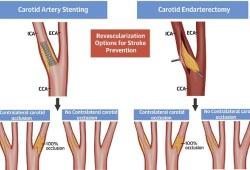 JACC:对侧颈动脉闭塞对颈动脉血运重建术患者的预后影响