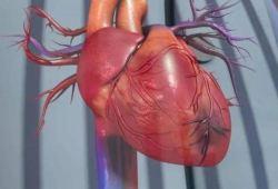 J Am Coll Cardiol:采用连续热稀释法测定冠脉疾病患者的绝对冠脉血流量