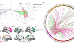 "Cerebral Cortex:前顶控制网络预测记忆抑制<font color=""red"">能力</font>"