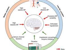 "JAMA Neurology:高血压加速<font color=""red"">痴呆</font>发生,那么强化降压能预防老年<font color=""red"">痴呆</font>吗?"