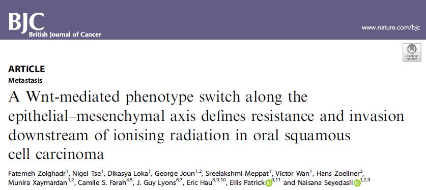 Br J Cancer:上皮-間充質轉換影響口腔鱗狀細胞癌的放療抗性和細胞侵襲