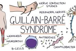 Lancet子刊:吉兰-巴雷患者需要进行第二次免疫球蛋白治疗吗?