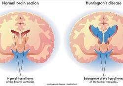 "Lancet子刊:不同脑域铁代谢和髓鞘改变或可提前20年对<font color=""red"">舞蹈</font><font color=""red"">病</font>进行预测"