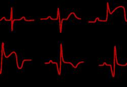 JACC:托珠单抗显著改善急性ST段抬高心肌梗死患者的心肌挽救指数