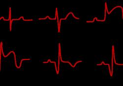 """JACC:托珠单抗显著改善急性ST段抬高<font color=""""red"""">心肌</font><font color=""""red"""">梗死</font>患者的<font color=""""red"""">心肌</font>挽救指数"""