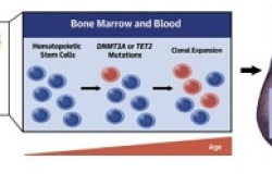 JACC:克隆性造血与左心室射血分数降低的心衰进展风险的相关性