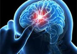 "Stroke:脑<font color=""red"">淀粉</font><font color=""red"">样</font>血管病患者枕叶皮质钙化"