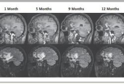 NEJM:HSV-1G207溶瘤病毒疗法治疗儿童高级别胶质瘤