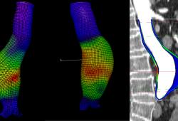 JAHA:破裂和无症状完整的腹主动脉瘤患者峰值壁应力和峰值壁破裂指数比较