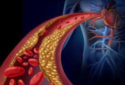 Am J Hematology: 新冠患者接受抗凝治疗可以减少死亡率