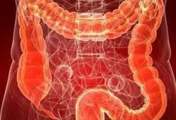 DCR: IBD患者全结肠切除术后直肠癌的发生风险明显降低