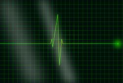 ESC预防心脏病学大会2021:有心脏病风险的患者应多运动,以免心脏病发作和中风