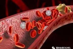 BMJ :Covid-19导致脑血栓的风险是接种疫苗后的10倍