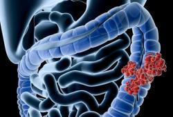 BMC Gastroenterology:与选择性结直肠癌手术患者生存结局相关的危险因素究竟有哪些?