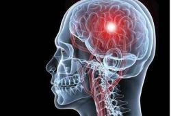 Sci Transl Med:肾上腺素能系统为靶点抑制脑出血后神经炎症