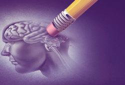 Nature子刊:别急着祛除斑块!最新研究提示阿尔兹海默症中斑块或有保护性