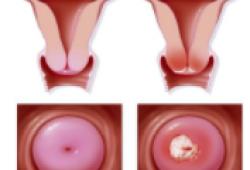 Lancet Oncol:宫颈癌前病变和浸润性宫颈癌的易感遗传变异!